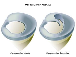 meniscopatia mediale