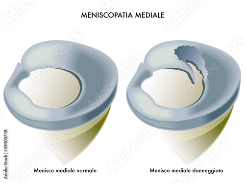 meniscopatia mediale