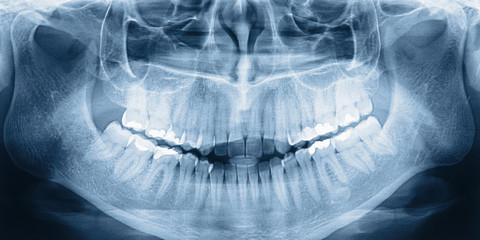 X-ray scan of teeth