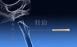 Akupunktur, eine Methode der traditionellen chinesischen Medizin poster