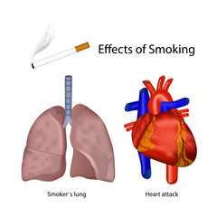 smoking effects of the human body vector illustration