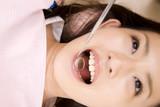 歯科診療を受ける女性