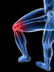 Schmerzendes Kniegelenk - Skelett