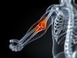 3d rendered medical illustration of an elbow bursitis