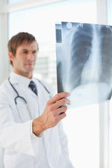 Chest x-ray held by a doctor in front of a window