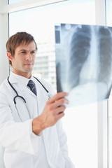 Serious surgeon holding a chest x-ray