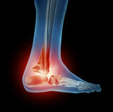 Ankle Foot Pain poster