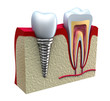 Anatomy of healthy teeth and dental implant in jaw bone.