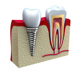 Fototapety Anatomy of healthy teeth and dental implant in jaw bone.