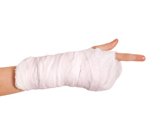 Broken arm in a cast