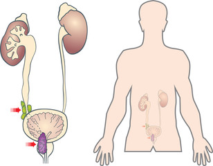 prostate cancer metastasis