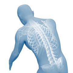 Rückenschmerzen - Rücken mit Röntgenbild