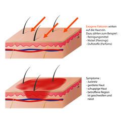 allergisches kontakt ekzem vektor illustration