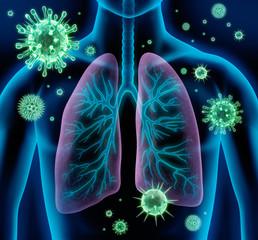 Lungeninfekt