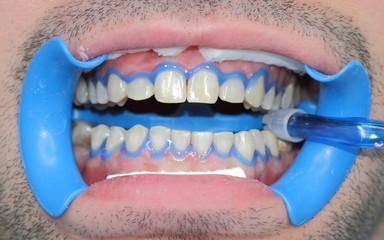 Bocca preparata allo sbiancamento dentale