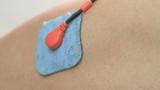 electrodes on quadriceps poster