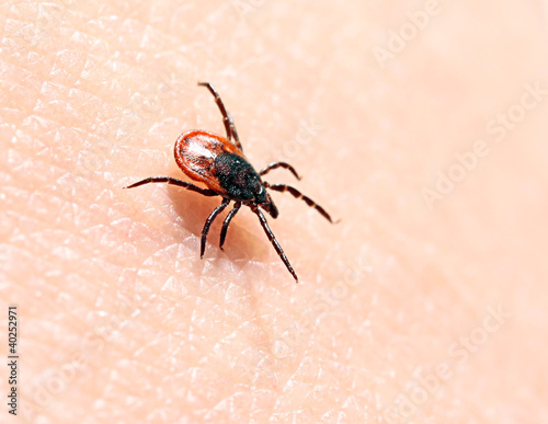 Ticks ​​on human skin.