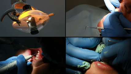 Dental control, cleaning and implant (4 frame)