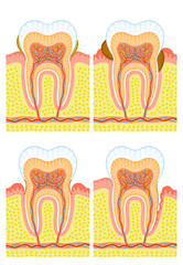 Internal structure of tooth: dental calculus, decay