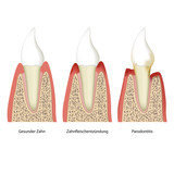 parodontitis tooth plaque vector illustration