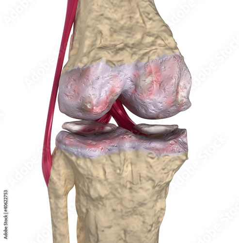 Osteoarthritis : Knee joint with ligaments and cartilages