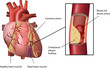 Human Heart Coronary Problem with Cholesterol Plaque Build up - 40639907