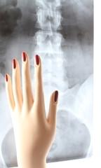 mano di manichino su raggi x corpo di donna