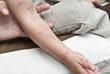 Sintomas del herpes zoster en el brazo de un niño.
