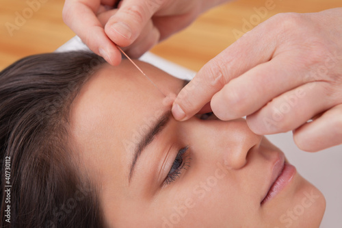 Acupuncture needles on head