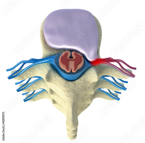 Prolapse of intervertebral disc. Top view