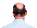Hair loss. Bald man.