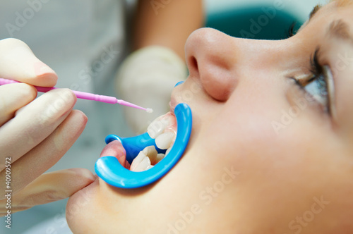 dental procedure of teeth protecting