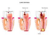 Carie dentaria - 41129144