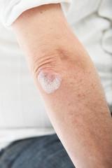 Schuppenflechte oder Hautausschlag am Ellenbogen