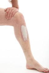 Schuppenflechte oder Psoriasis am Bein