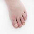 Schuppenflechte unter den Fußnägeln