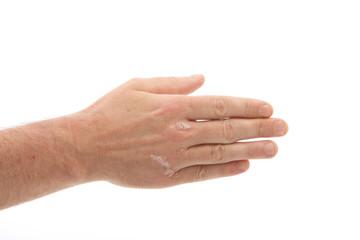 Schuppenflechte oder Psoriasis an der Hand und unter den Fingern