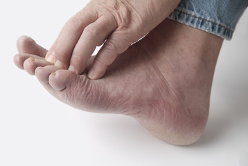 man with itchy toes