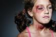 Leinwanddruck Bild - Domestic violence