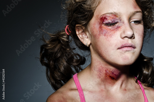 Leinwanddruck Bild Domestic violence