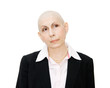 Real woman cancer patient undergoing chemotherapy