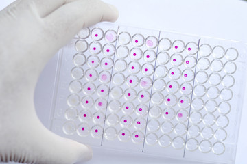 HIV testing by using agglutination method