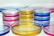 placas petri con fluidos de colores