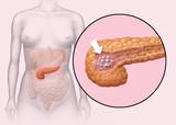 Tumor in Bauchspeicheldrüse poster