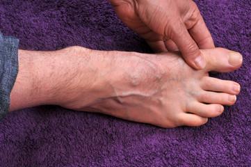 Massage d'un orteil