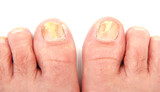 Toenails infected with a fungus poster