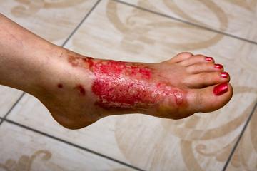 Burn feet