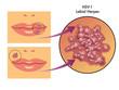 herpes labiale