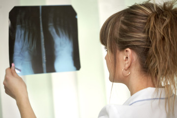 Sickness. Female doctor examining an x-ray