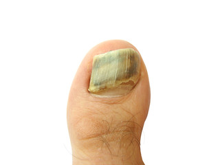 Bruise on toe nail